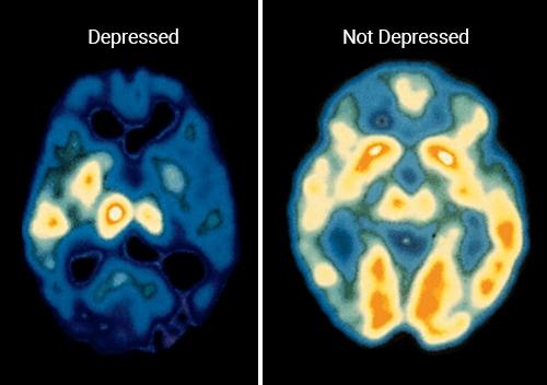 CT scan of a human brain after ketamine treatments copy
